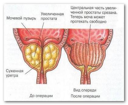 аденома простаты лечение