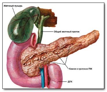 Лечения хронического панкреатита