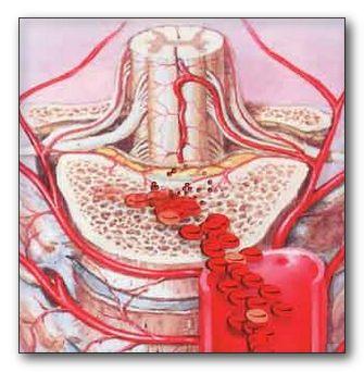 Анемия железодефицитная лечение