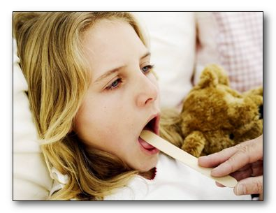 Ангина, тонзиллит, воспаление горла, ларингит, фарингит