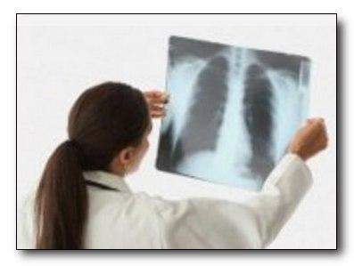 Пневмония в домашних условиях