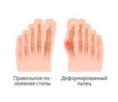 Как избавиться от шишки на ноге